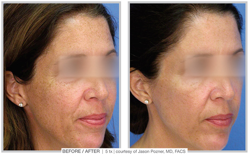 MicroLaserPeel Case 1 - Clinique Dallas Plastic Surgery, Medspa & Laser Center
