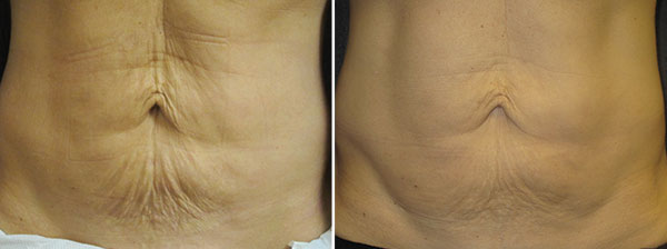 SkinTyte Skin Firming Laser - Clinique Dallas Plastic Surgery, Medspa & Laser Center