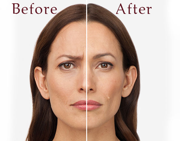 Botox - Dallas Medspa and Laser Center | Clinique Dallas
