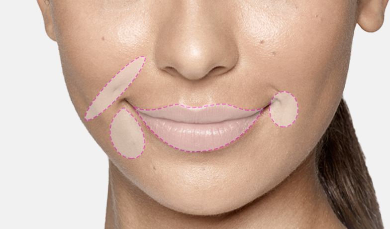 Restylane Areas - Clinique Dallas Plastic Surgery, Medspa and Laser Center