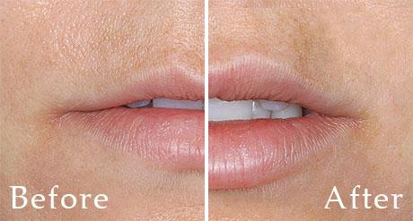 Dallas Lip Augmentation Restylane - Plastic Surgery, Medspa and Laser Center | Clinique Dallas