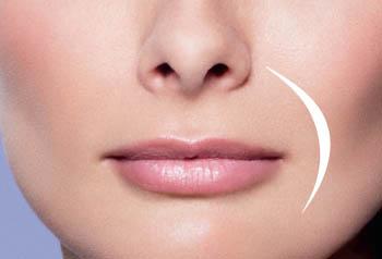Dallas Juvederm XC - lips - Clinique Dallas Plastic Surgery, Medspa and Laser Center