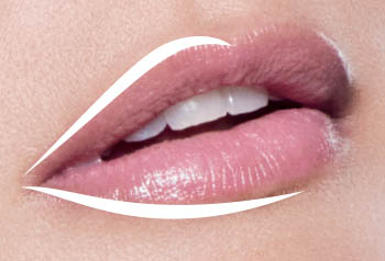 Dallas Juvederm Ultra XC - lips - Clinique Dallas Plastic Surgery, Medspa and Laser Center