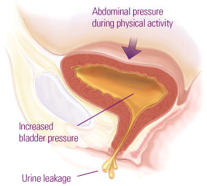 Stress Urinary Incontinence - Vaginal Aesthetics Center   Clinique Dallas